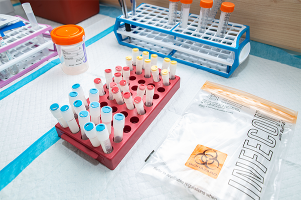 A rack of tubes with biological samples.